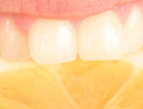 Treating Tooth Erosion to Protect Your Teeth from Further Damage