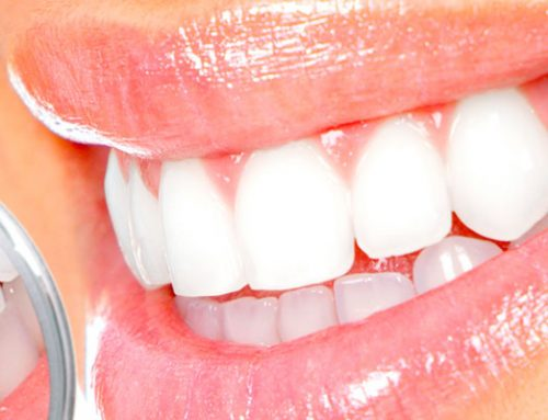 Closing Gaps and Improving Smiles