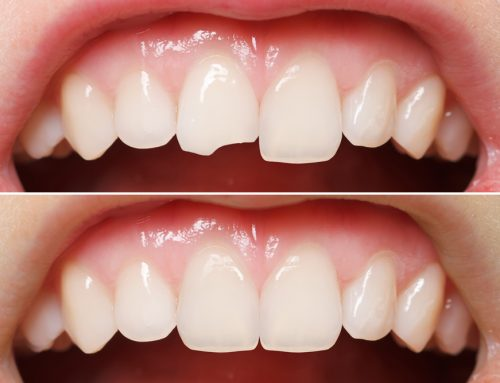 Cosmetic and Restorative Dentistry for Chipped Teeth